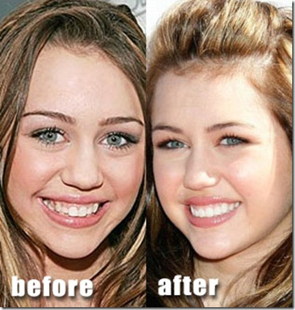 miley-cyrus-before-after-plastic-surgery