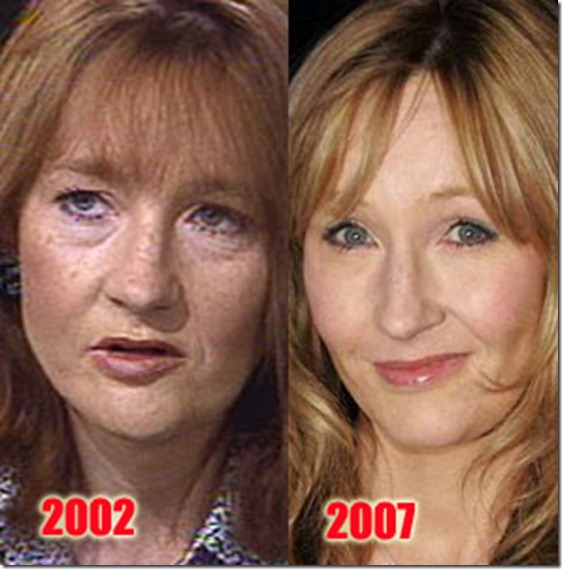 plastic-surgery-before-and-after-1