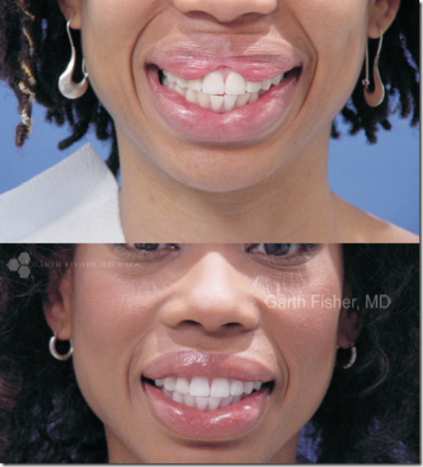 upper-and-lower-lip-reduction-and-contouring